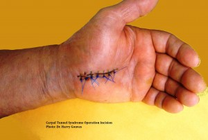 Carpal Tunnel Syndrome Operation Incision